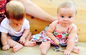 gemelos displasia