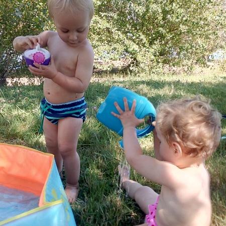 displasia gemelos